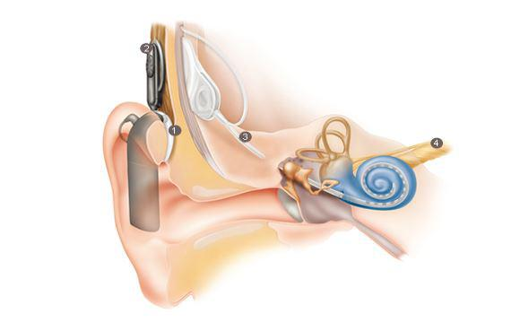 an essay on the invention and utilization of the cochlear implant